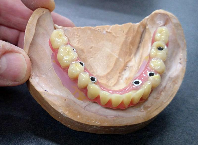taxe afssaps prothesiste dentaire La majorité des produits dentaires sont des dispositifs médicaux classifiés en 4  classes en fonction de leur criticité la démarche d'obtention du marquage ce,.